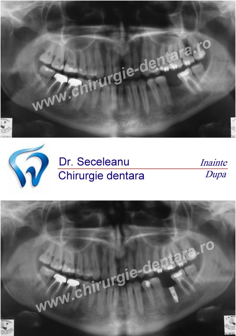 implant%20dentar%20inferior Cazuri Pacienti