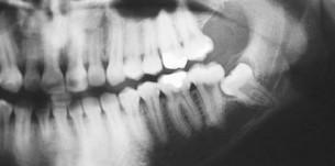 radiografie molar de minte inclus