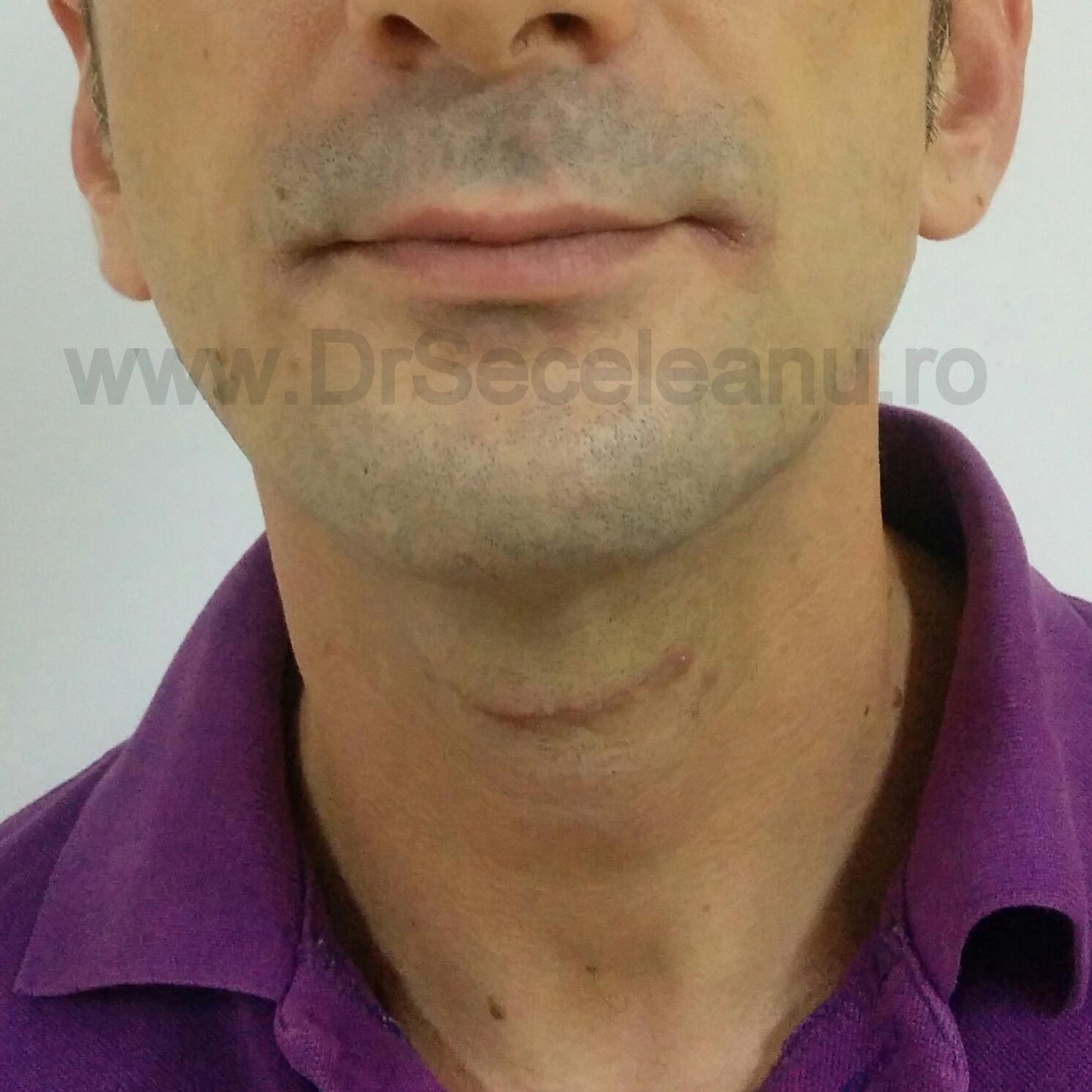 Cicatrice postoperator vedere frontala Excizie chist tiroida