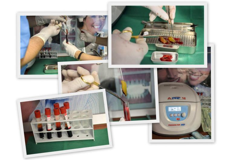 Operatie cu PRF Imagini din operatii