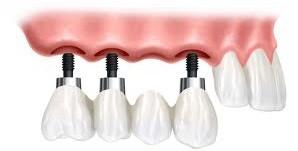 Punte fixa cimentata pe implante dentare