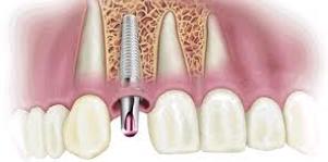 osteointegrarea sau vindecareaunui implant dentar sau implant dentar integrat